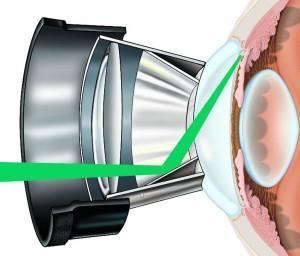 equipamento-glaucoma