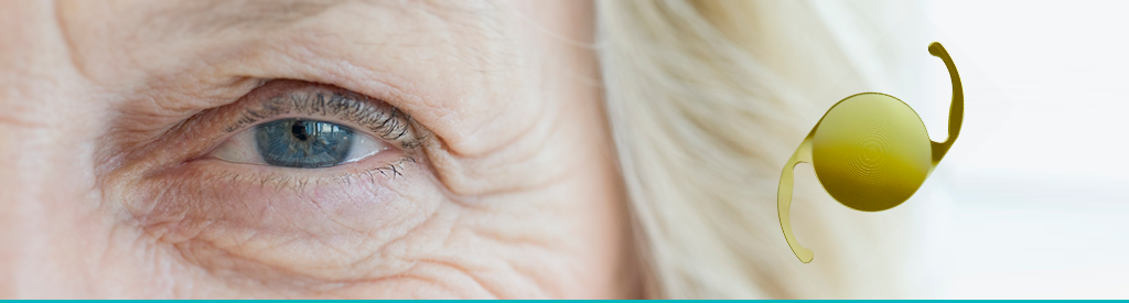 lentes-intra-oculares
