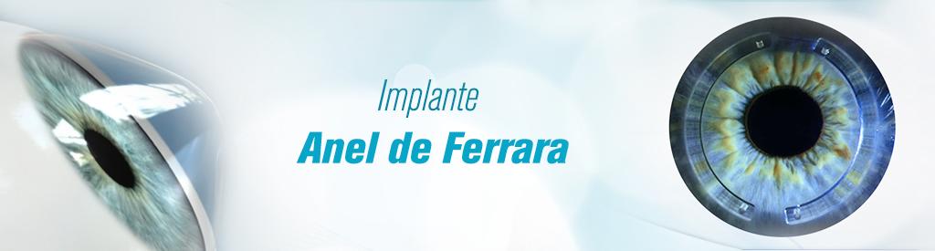 89fc7adfd72bc Implantes de Anel de Ferrara – o grande aliado do tratamento do Ceratocone