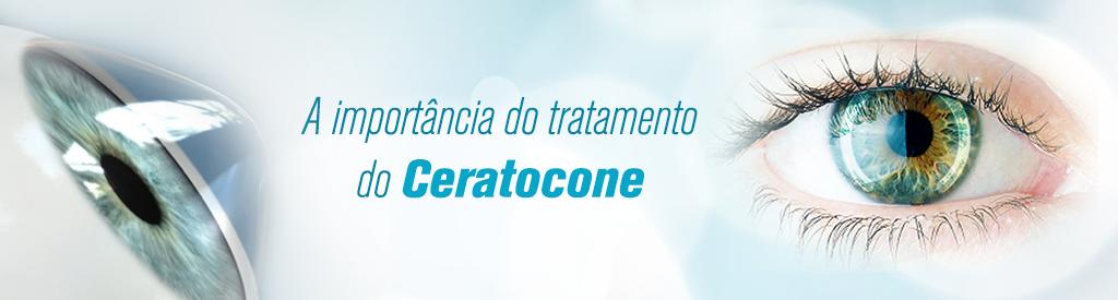 tratamento-do-ceratocone-neo-bh