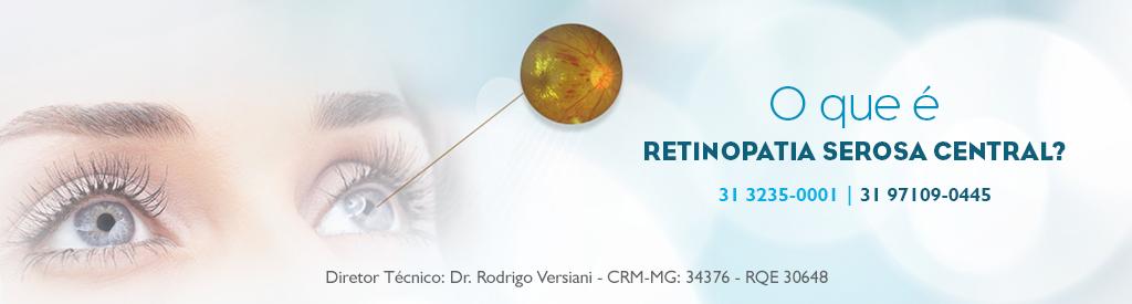 retinopatia-serosa-central-neo-belo-horizonte